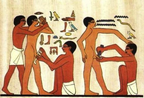 ختنه در مصر باستان